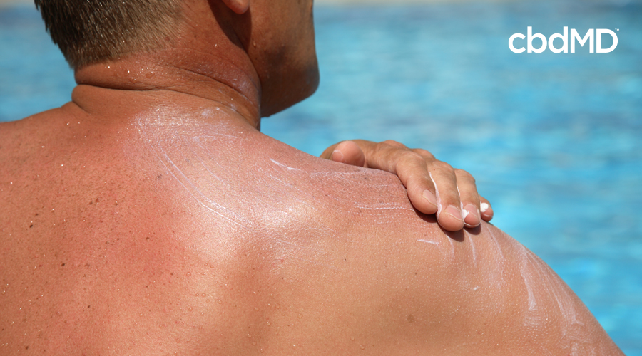A man at a swimming pool applies sunscreen to his bare shoulders