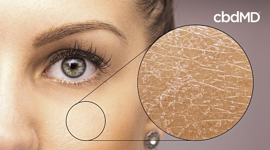 A woman's face shows an enlarged segment of of skin