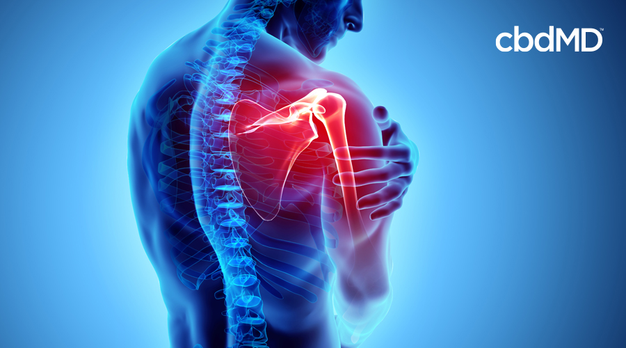Graphic with skeleton image of man with red glow highlighting inflamed right shoulder