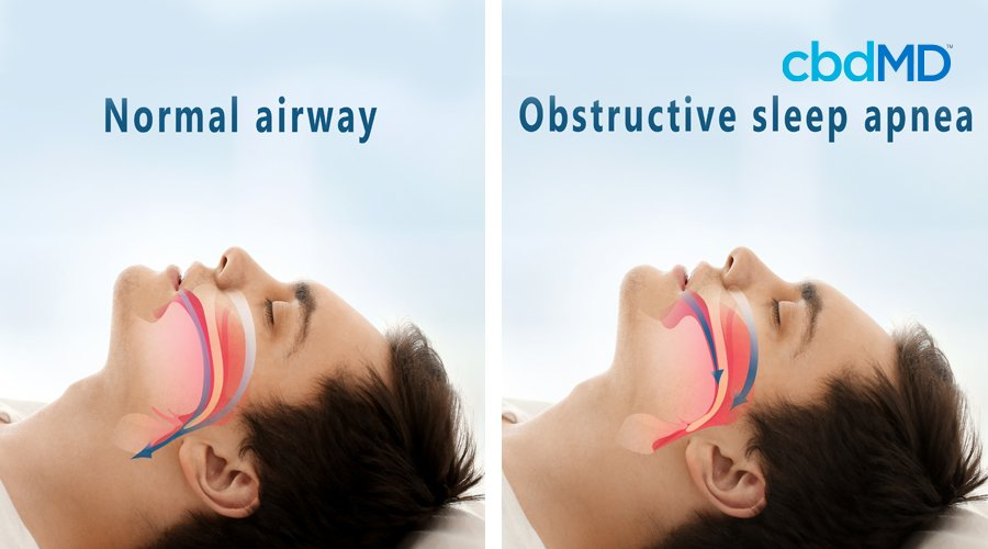 Infographic of man with dark hair showing normal airway and obstructive sleep apnea airwave for breathing