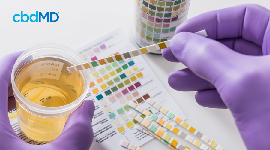 A purple gloved technician performs a urinalysis drug screening using reactive strips