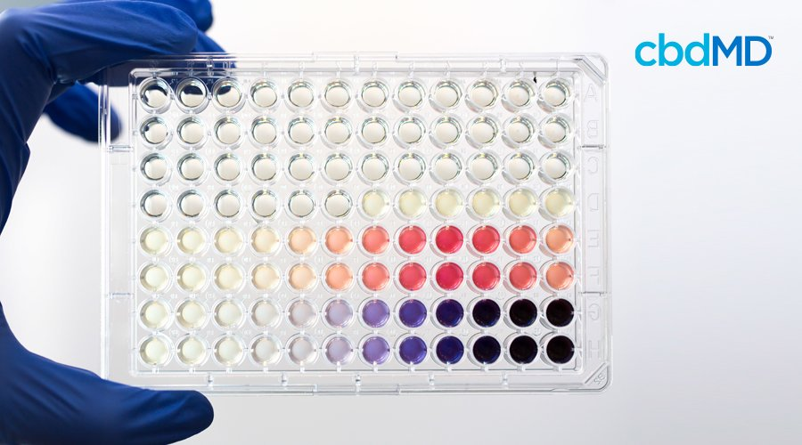 A blue gloved hand holds up a testing tray with the results of a drug screening urinalysis.