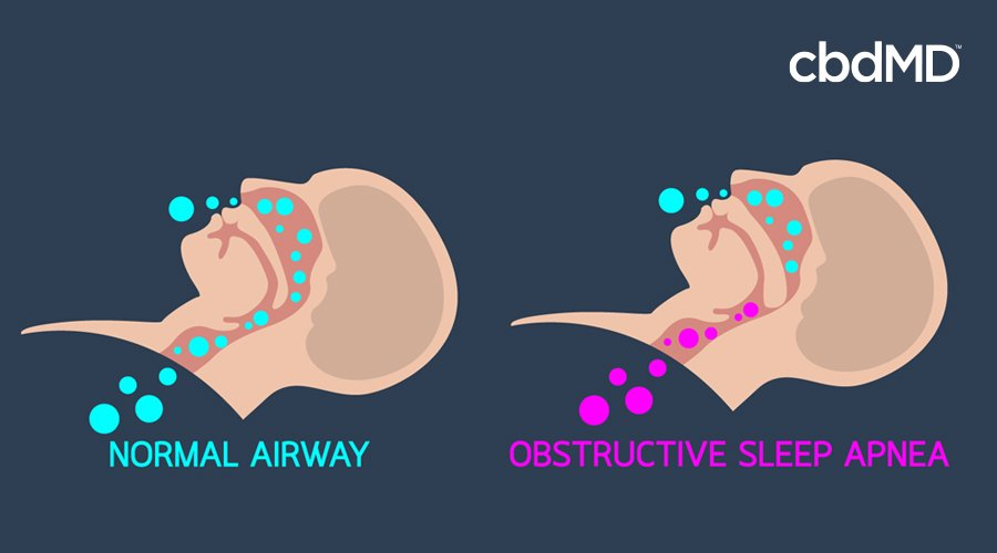 Graphic depicting a normal airway compared to the airway of a person with obstructive sleep apnea